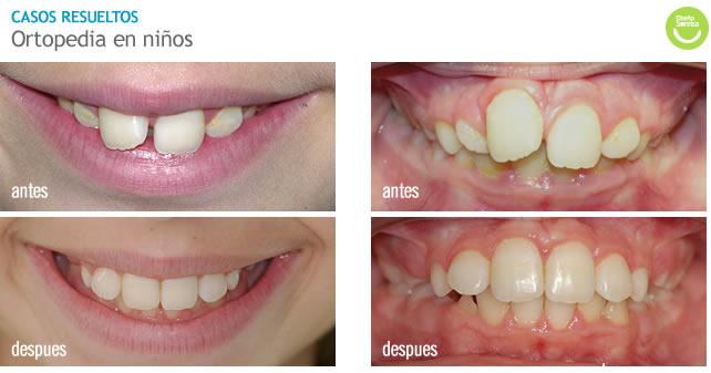 Ortodoncia Temprana En Niños Pekelandia